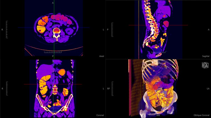 4-view layout  (axial, sagittal, coronal and volume) of an Abdomen CT with the NIH Fire color palette applied.